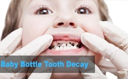Baby Bottle Tooth Decay | My Kids Hometown Dentist