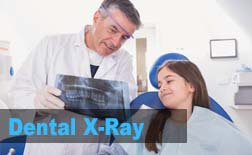 Dental X-Ray | My Kids Hometown Dentist