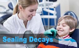 Sealing Decays | My Kids Hometown Dentist