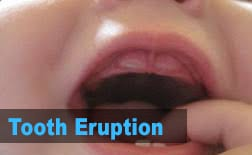 Tooth Eruption | My Kids Hometown Dentist