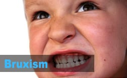 Bruxism | My Kids Hometown Dentist